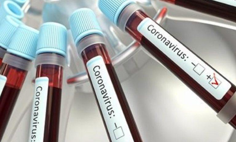 Bilancio coronavirus 24 luglio