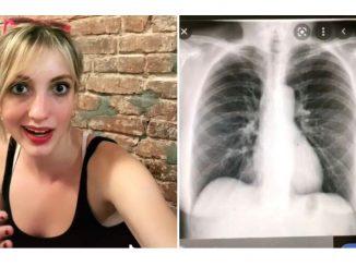 Claire Mack, destrocardia