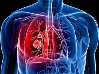 Cancro ai polmoni: i sintomi a cui fare attenzione
