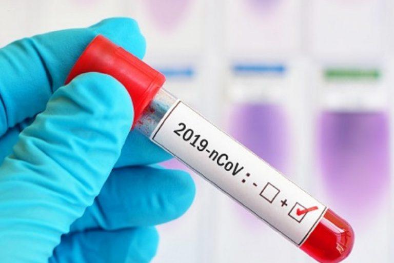 Test degli anticorpi e vaccino: non sono poi così correlati