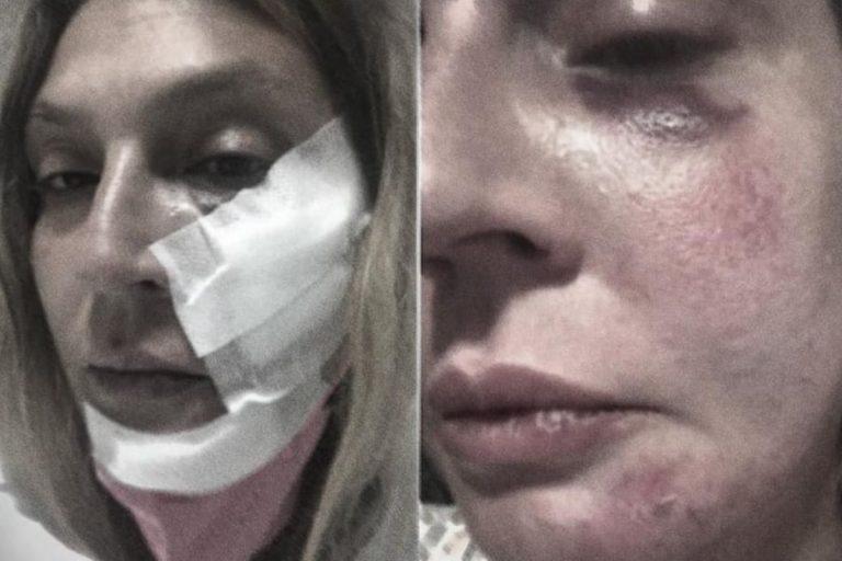 Tortora, ricercatrice 42enne picchiata per aver accudito dei cuccioli randagi in vacanza: 4 arresti