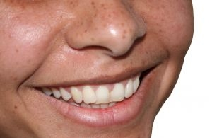 white teeth fast 800x800