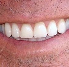 article page main ehow images a04 pc o5 whiten teeth natural way 800x800